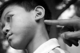 男童因遭同学投诉被老师连扇十余个耳光