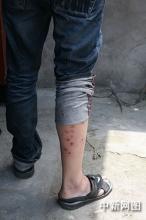 """因""""来钱快"""" 浙江一男子在腿上扎洞称被狗咬伤"""