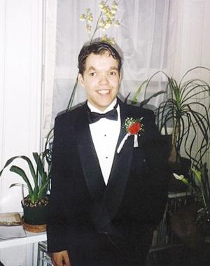 美国一名男子心脏挂体外存活34年(组图)