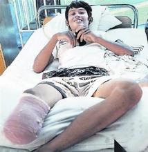 印尼少年砍断自己小腿逃出地震废墟(图)