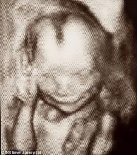 英国媒体公布胎儿在母亲腹中微笑照片