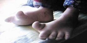 女童年仅4岁穿40码鞋 因脚大遭幼儿园拒收