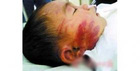 继母殴打3岁女童后扔进便池致脑出血