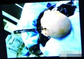 少女疑玩过火尖刀入脑 手术后顺利取出