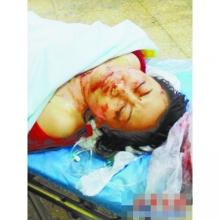 山东女子遭男友毒手 右手臂被活生生割下