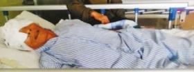 警方调查老人住院被挖眼事件