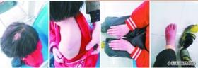 11岁女孩遭母亲虐待 回家迟到5分钟被暴打