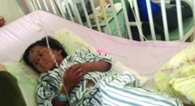 残忍!4岁女孩被亲妈打得颅内出血